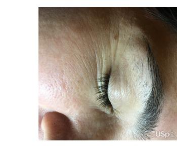Предлагаю услуги ,эпиляция волос метод электролиз
