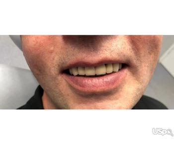 CAD/CAM для дантистов